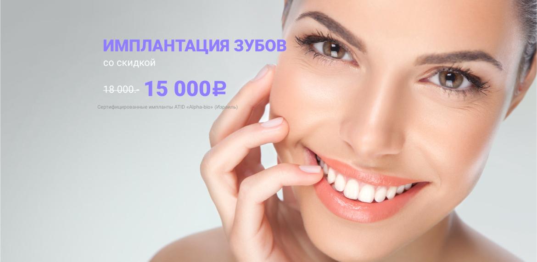 """Имплантация зубов со скидкой 3000 руб. в """"Сити Смайл"""""""