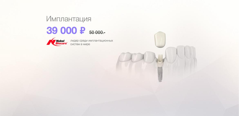 """Имплантация зубов со скидкой 22% в """"Сити Смайл"""""""